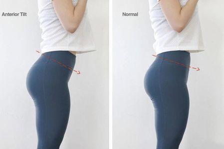 骨盆前傾 vs 翹臀